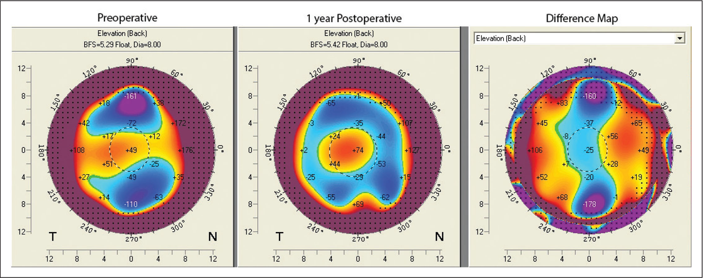 Pentacam corneal tomography (Oculus Optikgeräte, Wetzlar, Germany) showing the posterior elevation from the preoperative visit in 2017, 1-year postoperative visit in 2018, and difference map. There is improvement in regularity in the midperiphery with a small amount of central elevation.