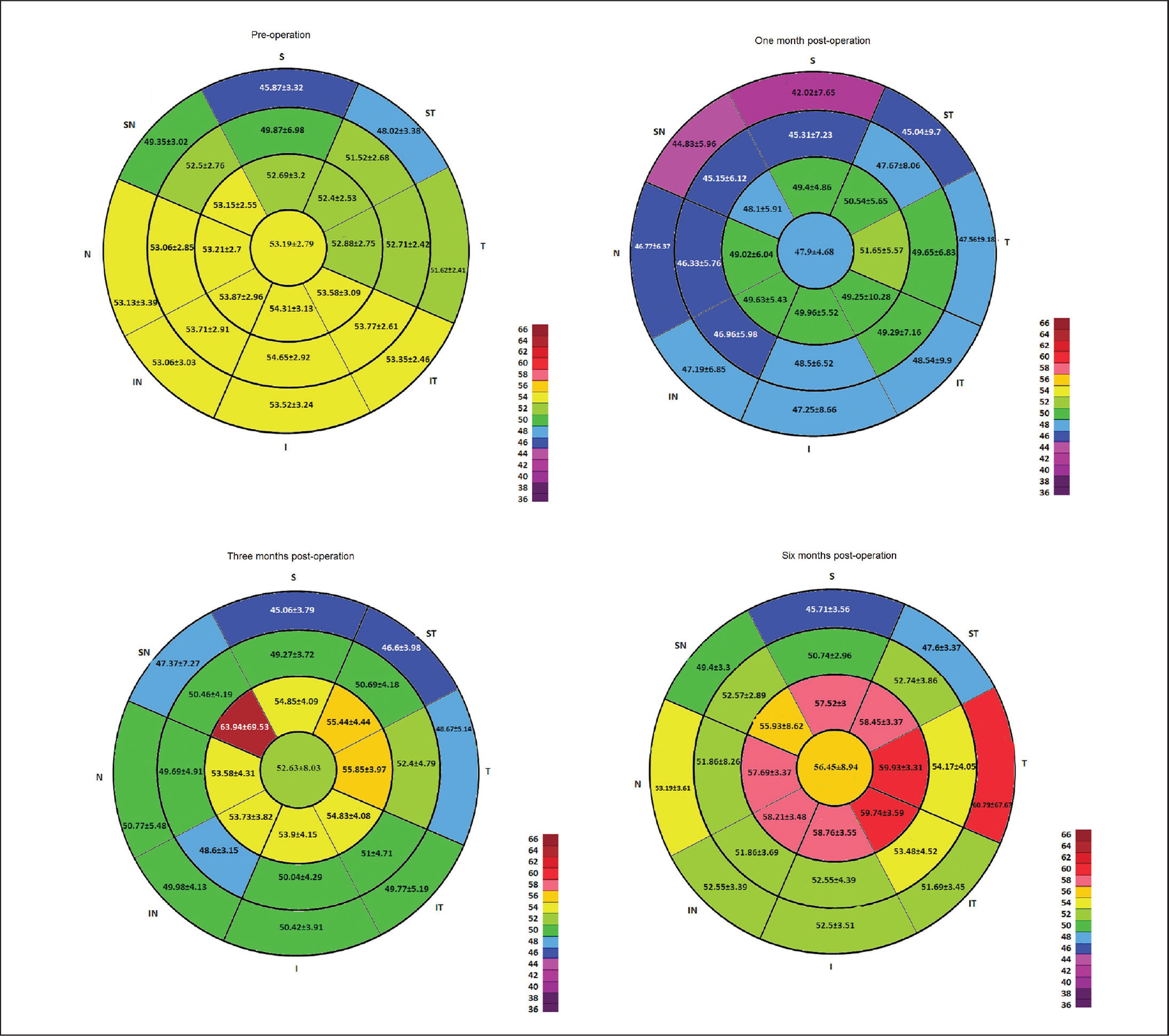 Schematic corneas displaying mean and standard deviation of corneal epithelial thickness in 25 sectors in the 9-mm diameter area preoperatively and 1, 3, and 6 months postoperatively (n = 52 eyes).