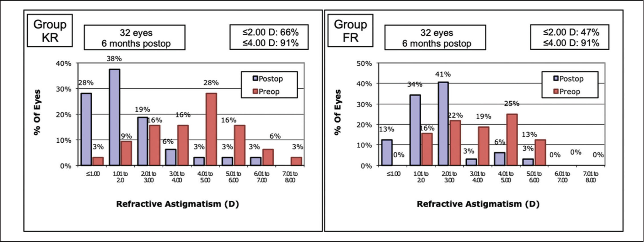 Manifest refractive astigmatism (MRA) distribution before and after treatment in the Keraring (Mediphacos, Belo Horizonte, Brazil) group (left) and in the Ferrara (AJL Ophthalmics, Vitoria, Spain) group (right). D = diopters
