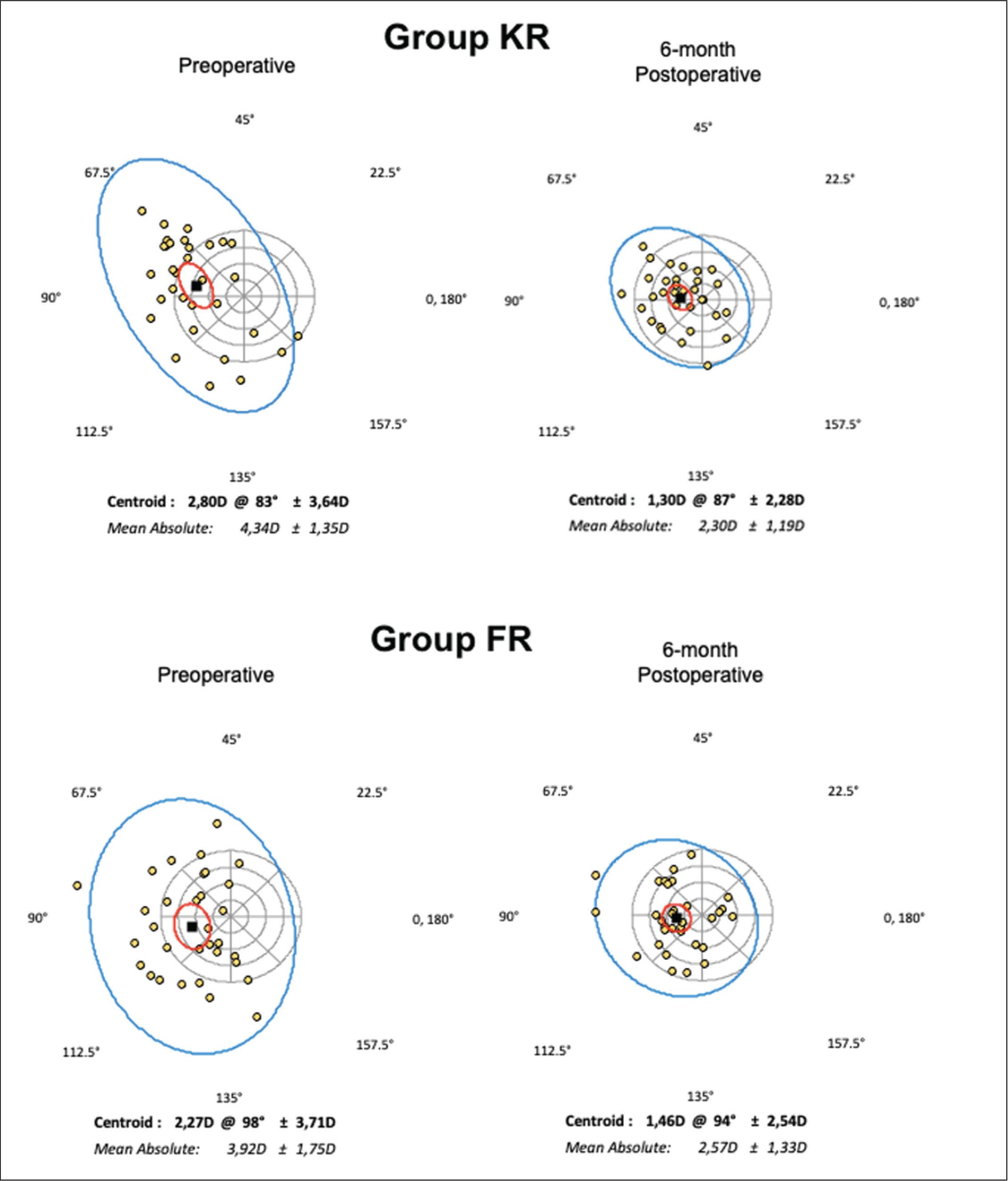 Preoperative (left) and 6-month postoperative (right) double-angle polar plot changes for corneal tomographic astigmatism (dK) in the Keraring (KR) (Mediphacos, Belo Horizonte, Brazil) group (superior) and in the Ferrara (FR) (AJL Ophthalmics, Vitoria, Spain) group (inferior). D = diopters