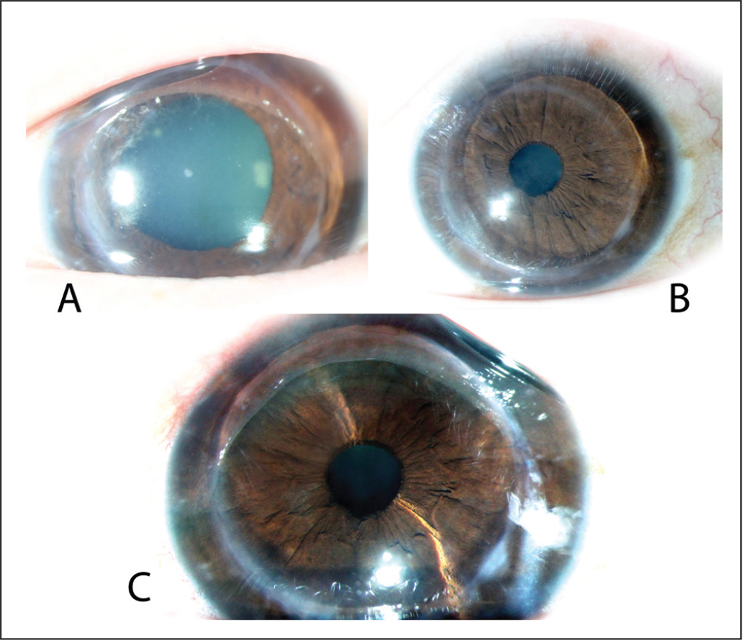 (A) Left eye of a patient who developed stromal rejection following small incision lenticule extraction, which was done to correct astigmatism after deep anterior lamellar keratoplasty. Graft cleared (B) 2 months and (C) 5 months after immunosuppressive therapy.