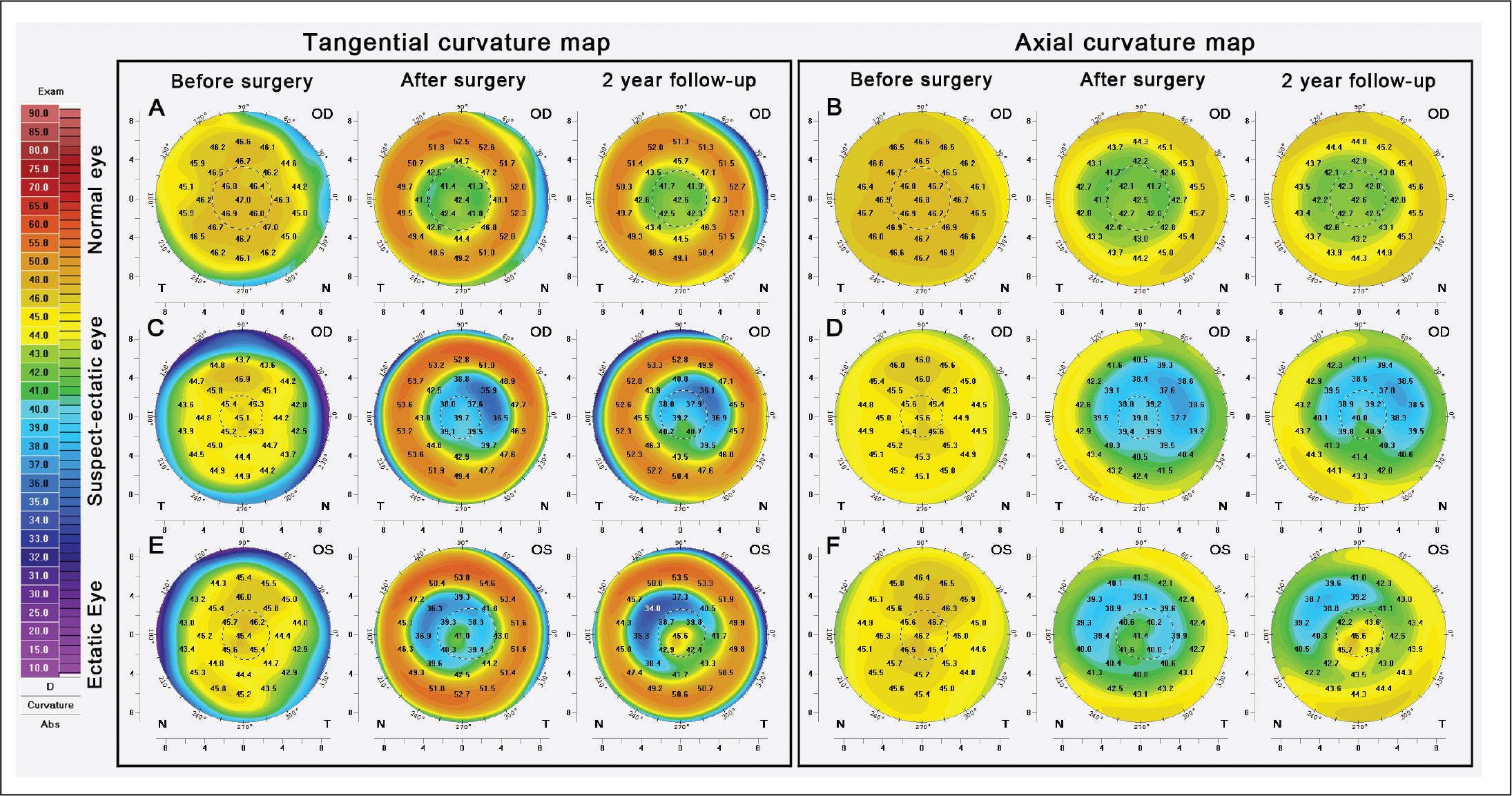Tangential (A, C, and E) and axial (B, D, and F) anterior curvature maps from Pentacam HR (OCULUS Optikgeräte, Wetzlar, Germany) (absolute American style color bar in diopters) for before surgery, after surgery, and 2-year follow-up time points, respectively. (A and B) Normal eye curvature maps are shown in the first row, (C and D) suspect-ectatic eye curvature maps are shown in the second row, and (E and F) ectatic eye curvature maps are shown in the third row.