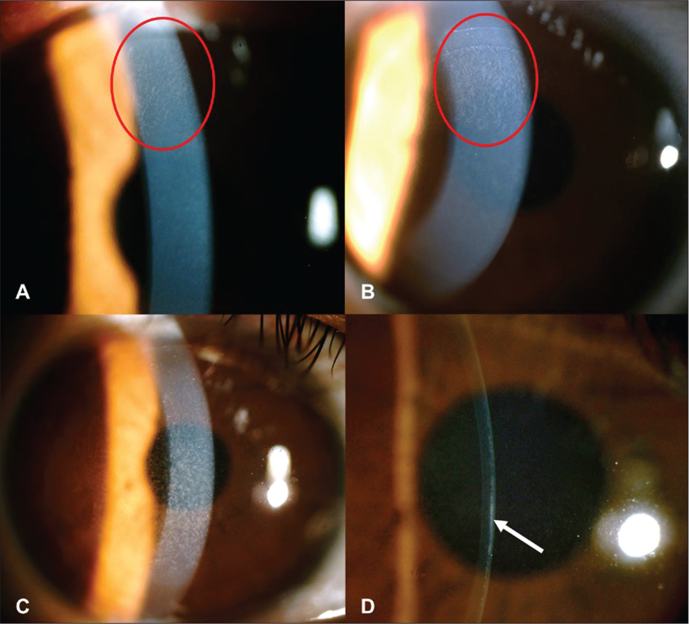 Slit-lamp photograph of eyes with different grades of diffuse lamellar keratitis (DLK) on the first postoperative day. (A) An eye with grade 1 DLK. A faint infiltrate in the cap periphery, especially in the peripheral interface around the small incision (red circle). (B) An eye with stage 2 DLK. Diffuse cellular infiltration in the interface but did not extend beyond the edge of the cap (red circle). (C) An eye with stage 3 DLK. A powdery cellular infiltration of the interface, involving the visual axis with multiple, fine granular collections clumped centrally. (D) With a narrow beam, the slit-lamp image showed a highly reflective structure in interface (arrow).