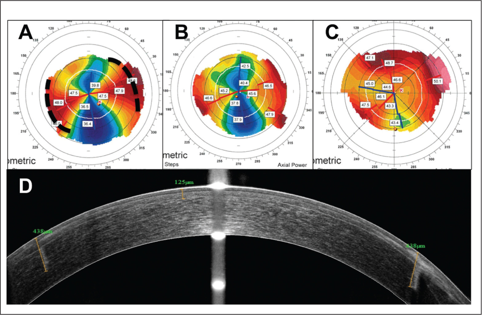 Representative results for a patient treated by deep intrastromal arcuate keratotomy with in situ keratomileusis. (A) Preoperative Orbscan (Bausch & Lomb, Rochester, NY) with two arcuate keratotomies drawn, (B) after phase 1 and (C) after phase 2. (D) Corneal anterior segment optical coherence tomography, sagittal view, with visualization of the arcuate keratotomies, and the corneal flap marked at 125 µm on this image. In this example, the two arcuate keratotomies were at 15° and 195°, with a length of 80° from 130 to 440 µm, and an optical zone of 6 mm. The flap was at 130 µm, on a cornea that was initially 550 µm thick at its thinnest point.