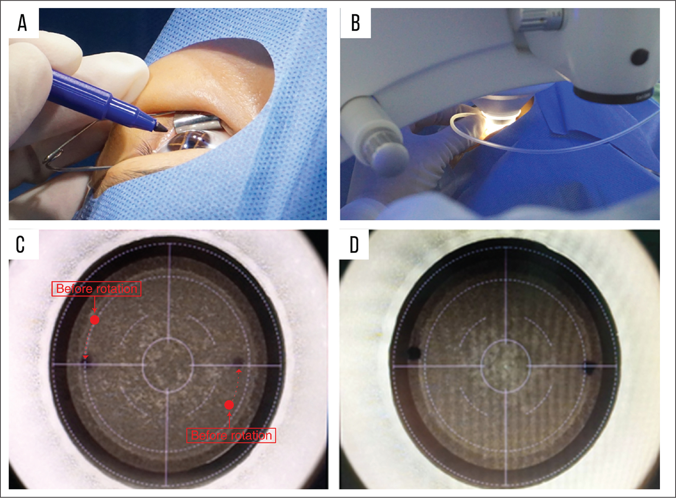 (A) Two tiny points were marked on the limbus extending 1.5 mm toward the center of the cornea, along the horizontal projection line of the AMARIS platform (SCHWIND eye-tech-solutions, Kleinostheim, Germany), using a skin marker pen. (B) For some eyes in the static cyclotorsion compensation (SCC) group, the cone was gently rotated until the horizontal marks were parallel with the 0° to 180° axis of the reticule. (C) VisuMax (Carl Zeiss Meditec, Jena, Germany) screenshots of an eye in the SCC group. The two red dots represent the position of corneal markers before rotation of the cone and the two blue dots are corneal markers after rotation. The dotted arrows represent the trajectory of rotation. (D) VisuMax screenshots of an eye in the control group without any compensation.