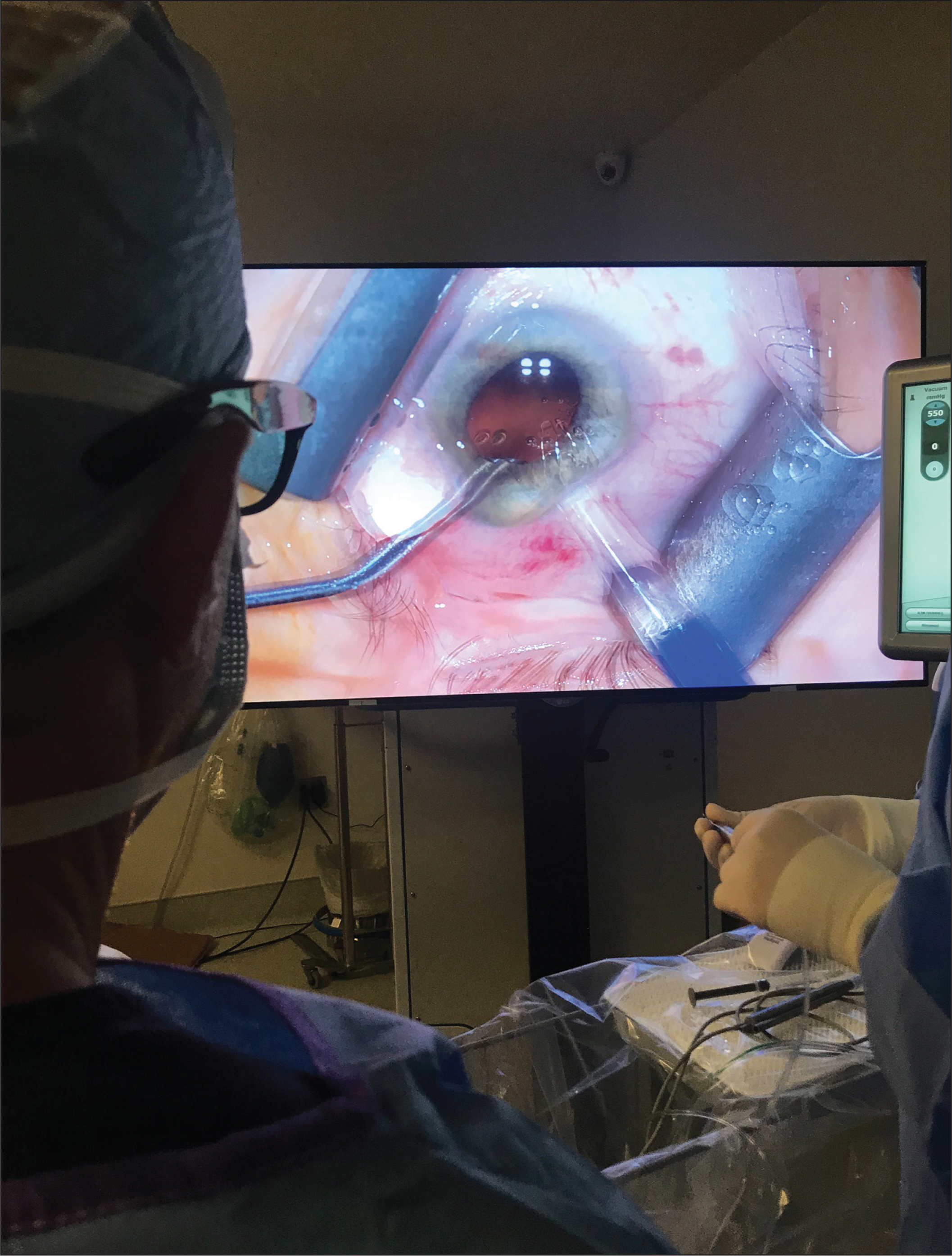 Image showing a surgeon using a three-dimensional visualization system during cataract surgery. The high definition three-dimensional screen, being 3 to 5 feet away from the surgeon, has the ability to magnify the image to a high magnification and offer the surgeon a natural body posture when operating.