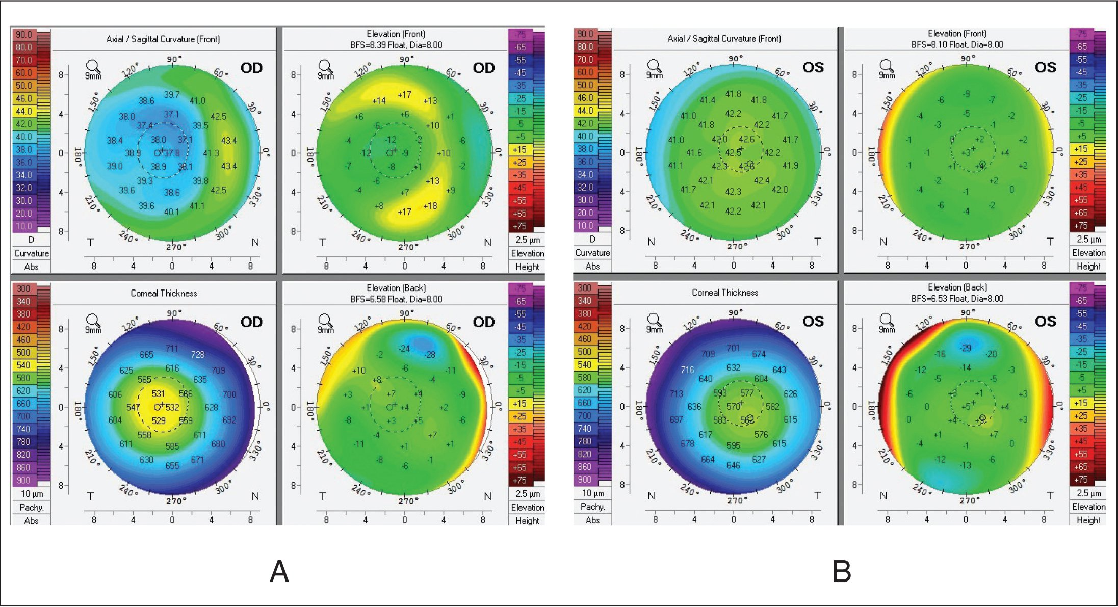 Pentacam (Oculus Optikgeräte, Wetzlar, Germany) results for case 1 at 16-year follow-up. There is slight temporal decentration of the ablation bed, symmetric between the left and right eye, and no evidence of ectasia.