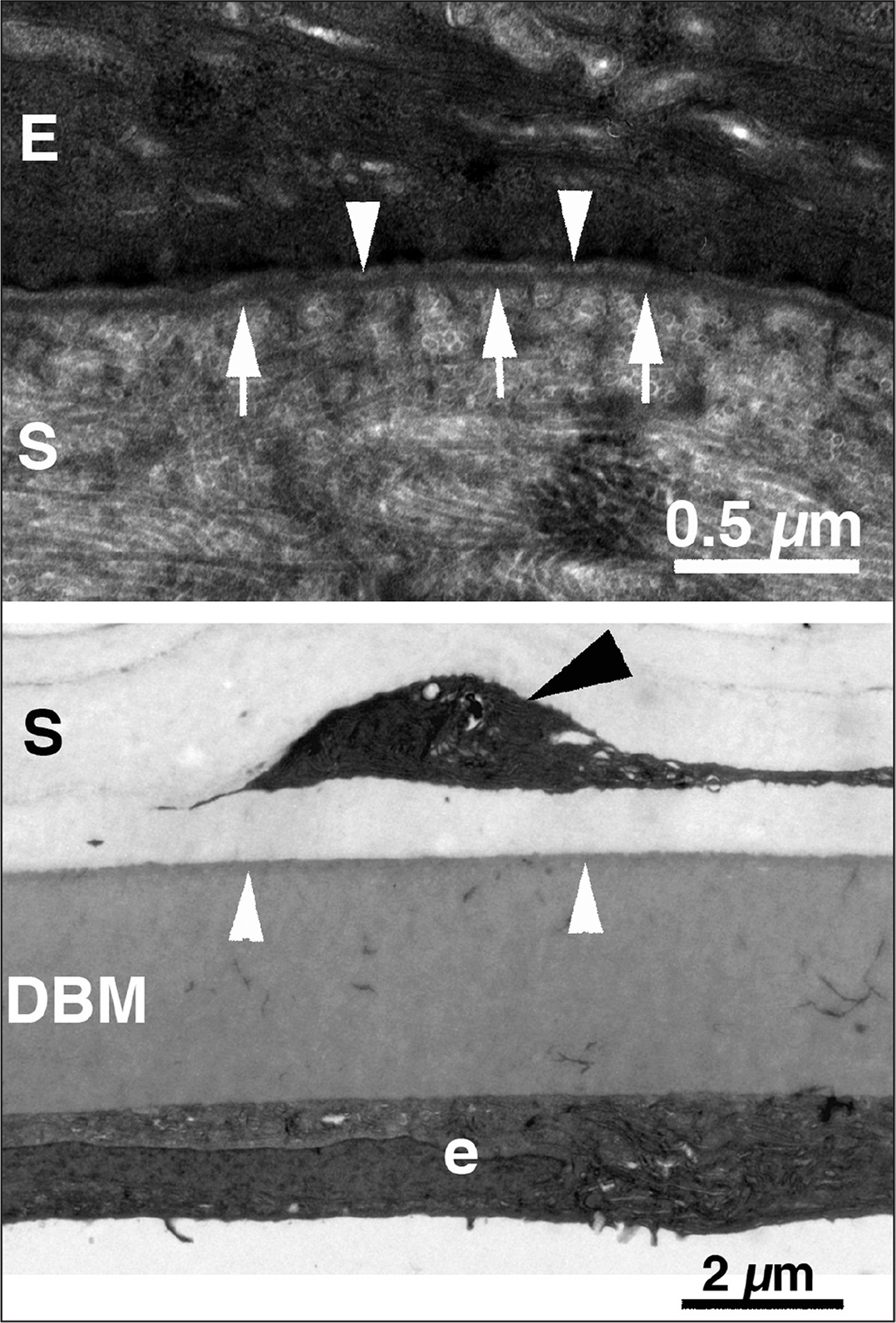 Ultrastructure of the epithelial basement membrane (EBM) and Descemet's basement membrane (DBM). (A) The rabbit corneal EBM at original magnification ×32,000 shows the lamina lucida (arrowheads) and lamina densa (arrows). E is the epithelium and S is the stroma. (B) The rabbit corneal DBM at original magnification ×9,000 in a 12-week-old rabbit is much thicker than the EBM. The anterior banded layer is indicated by the white arrowheads. The remainder of DBM is the posterior non-banded layer. e is the endothelium and S is the stroma. The black arrowhead is a keratocyte.