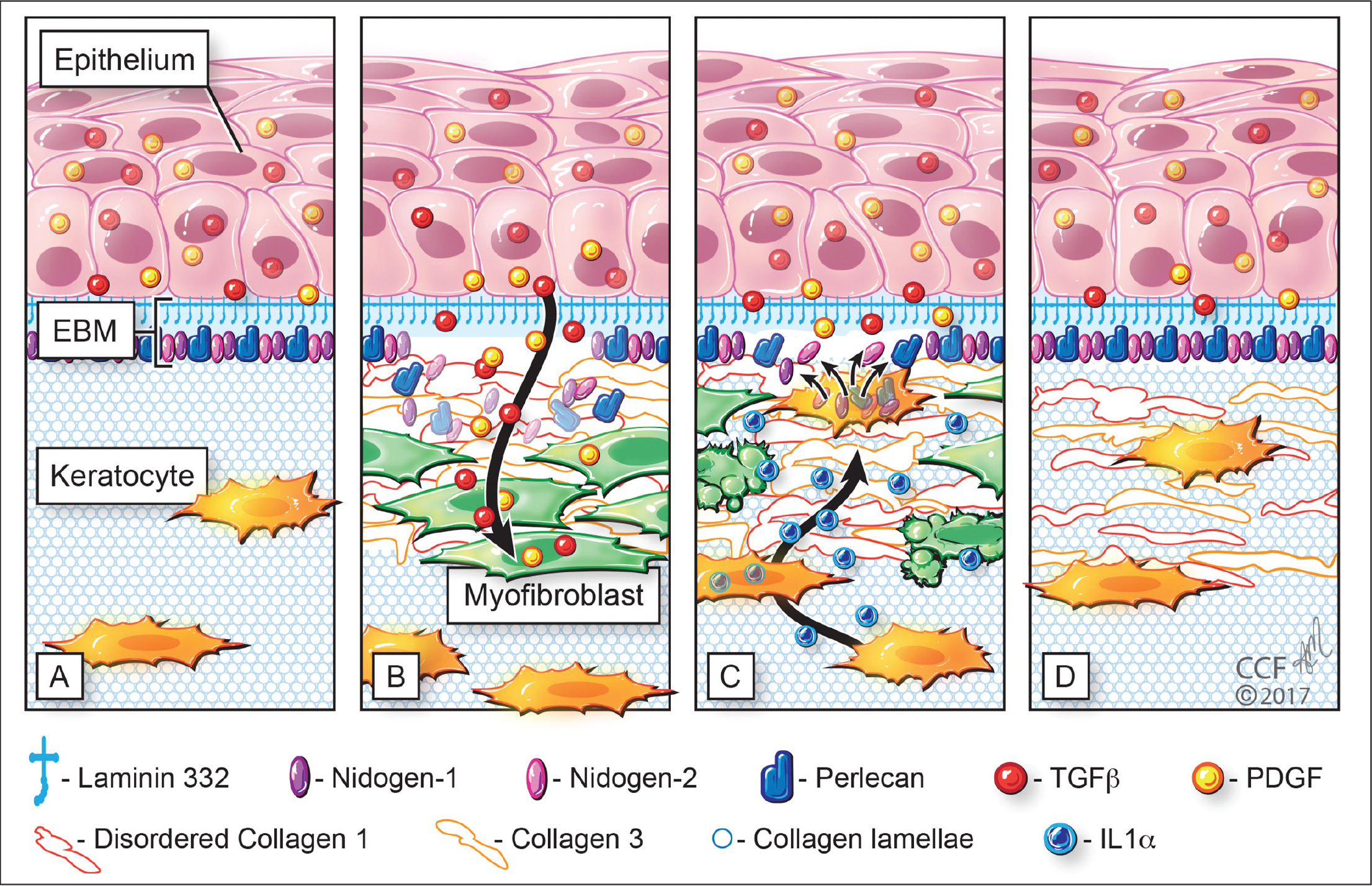 "Schematic illustration showing injury to the corneal epithelial basement membrane (EBM) and defective regeneration leading to myofibroblast development and fibrosis, followed by keratocyte contributions to regeneration of the EBM and removal of fibrotic extracellular matrix produced by myofibroblasts. (A) The normal unwounded cornea has intact EBM composed of laminin 332, nidogen-1, nidogen-2, perlecan, and other components not depicted—such as collagen type IV. The underlying stroma has keratocytes that maintain the highly organized stromal collagen lamellae and cornea transparency. Epithelium-derived transforming growth factor beta (TGF-β) and platelet-derived growth factor (PDGF) are blocked from penetration into the underlying stroma by binding to normal EBM components such as perlecan and collagen type IV. (B) After severe epithelial-stromal injuries, such as infections, trauma, and surgeries (eg, high correction photorefractive keratectomy), the epithelium and EBM are disrupted and activated TGF-β and PDGF penetrate into the underlying stroma at sufficient concentrations to drive the development of mature myofibroblasts from keratocyte-derived and bone marrow–derived (fibrocyte) precursor cells. Myofibroblasts are also opaque (relative to keratocytes) and secrete large amounts of disordered collagen type I, collagen type III, and other matrix materials that disrupt the organization of the normal stromal lamellae to produce corneal scarring (fibrosis). (C) Over months to years following the initial injury, keratocytes penetrate the anterior stromal myofibroblast layer and facilitate EBM regeneration via the production of laminins, nidogens, and perlecan in coordination with overlying epithelial cells that also produce these and other EBM components. The working hypothesis is that once the nascent laminin-332 layer is produced by the epithelium, more posterior EBM components must come from keratocytes to fully regenerate the normal EBM. This causes a decrease in TGF-β and PDGF penetration into the stroma from the epithelium and triggers myofibroblast apoptosis. This EBM regeneration process begins in a random spotty distribution within the stromal opacity to produce clear areas within the scarring called ""lacunae"" that can enlarge and coalesce over weeks to months to fully restore stromal transparency. (D) In many corneas, depending on the type and severity of the initial injury, all myofibroblasts disappear and keratocytes fully repopulate the stroma and reabsorb the remaining disorganized extracellular matrix materials secreted by the myofibroblasts to completely restore the normal morphology of the collagen lamellae and stromal transparency. IL1α = interleukin 1α. Reprinted with permission from Cleveland Clinic Center for Medical Art & Photography, ©2019. All rights reserved."