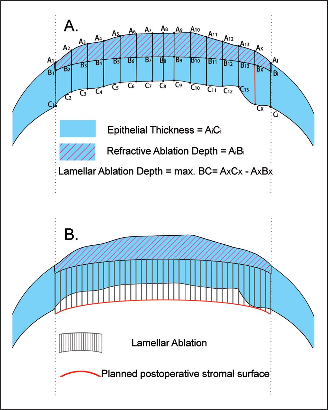 Schematic drawing illustrating the process of programing of the lamellar ablation depth. (A) Irregular epithelial thickness profile after primary refractive surgery derived by optical coherence tomography and refractive ablation plan profile, derived from corneal topography and patient's subjective refraction. The epithelial thickness (AiCi) and depth of ablation (AiBi) at corresponding locations are compared. At the location where the epithelial thickness exceeded the refractive ablation depth the most (shown in red line), the refractive ablation depth was subtracted from the measured epithelial thickness, giving the depth of the lamellar part of the compound ablation (max BC = AxCx − AxBx). (B) Lamellar ablation and planned postoperative stromal surface.