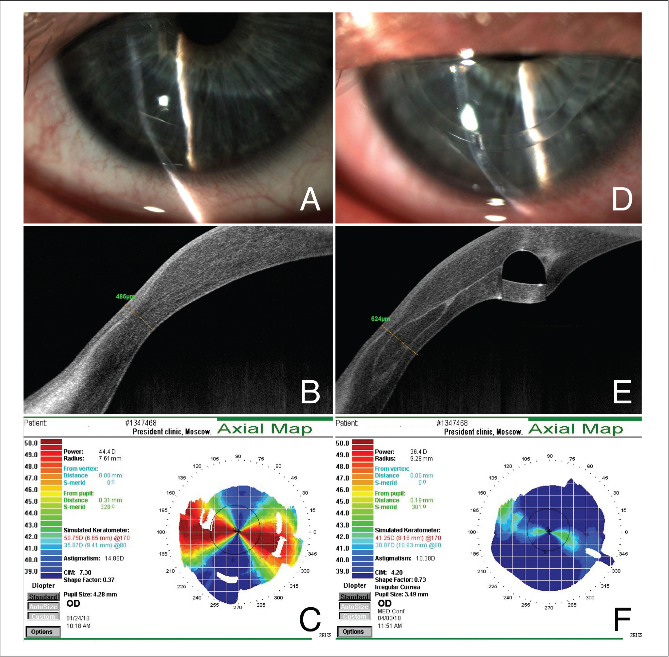 Preoperative and 3-month postoperative slit-lamp photographs, anterior segment optical coherence tomography (AS-OCT), and corneal topography images. (A) Zone of thinning in the lower peripheral cornea, (B) the same zone on AS-OCT imaging, and (C) corneal topography demonstrating simulated keratometry readings of 50.75 diopters (D) in the steep meridian and 35.87 D in the flat meridian with 14.88 D of astigmatism. Reinforced cornea with clearly visible lamellar graft on both (D) slit-lamp photograph and (E) AS-OCT. (F) Corneal topography shows a decrease in astigmatism by 4.50 D and in simulated keratometry values by 9.50 D in the steep meridian and by 5.00 D in the flat meridian.