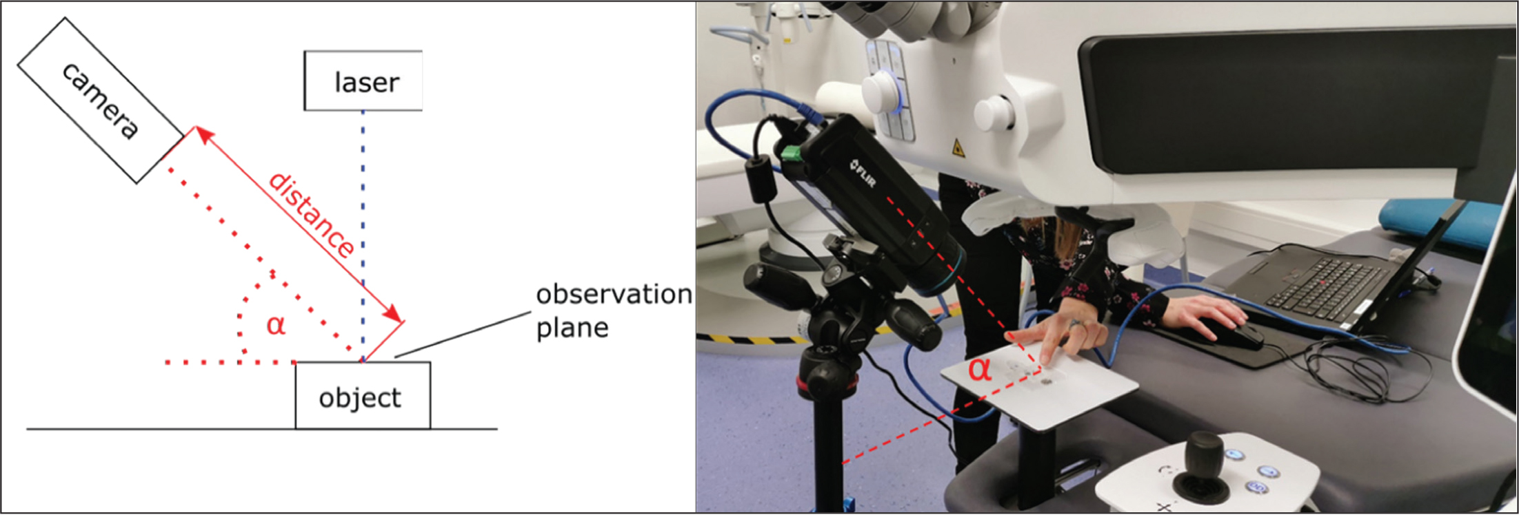Sketch and real image of the laser-camera set-up. Every polymethylmethacrylate plate or porcine eye was mounted on a holder and recorded with a thermal camera during ablation. An infrared thermal camera (FLIR-A 615) was positioned at 22 cm distance from the ablation focus and was tilted horizontally to an angle of approximately 60 degrees.