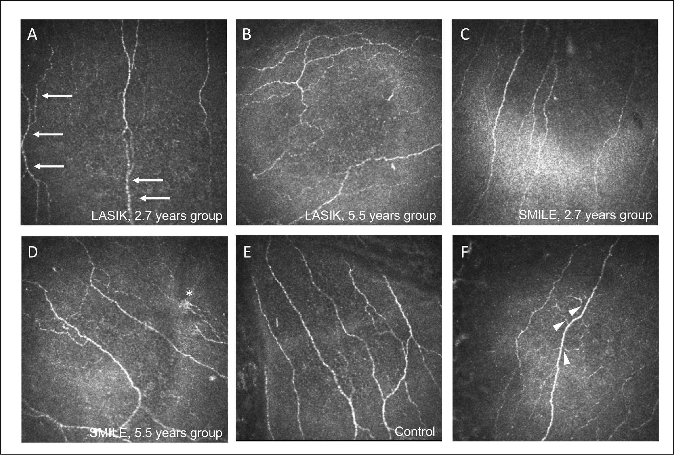 Representative in vivo confocal microscopy images on the central cornea for different groups. (A, B) The laser in situ keratomileusis (LASIK) eyes had significantly lower corneal nerve fiber density (CNFD), corneal nerve branch density (CNBD), corneal nerve fiber total branch density (CTBD), and corneal nerve fiber length (CNFL), and significantly more nerves with beading (arrows) than (C, D) the small incision lenticule extraction (SMILE) eyes. (B, D) The 5.5 years group (mean postoperative 5.5 years) had significantly higher CNFD, CNBD, and CNFL than the (A,C) 2.7 years group (mean postoperative 2.7 years), regardless of surgical types. (E) The control group had significantly higher CNFD and CNBD than the 5.5 year group in both SMILE and LASIK surgery. The postoperative eyes, irrespective of surgical types, had more tortuous nerves compared to normal patients. The (F) sprouting nerves (arrowheads) and (D) microneuromas (asterisk) were seen in surgical groups but not in the control group.