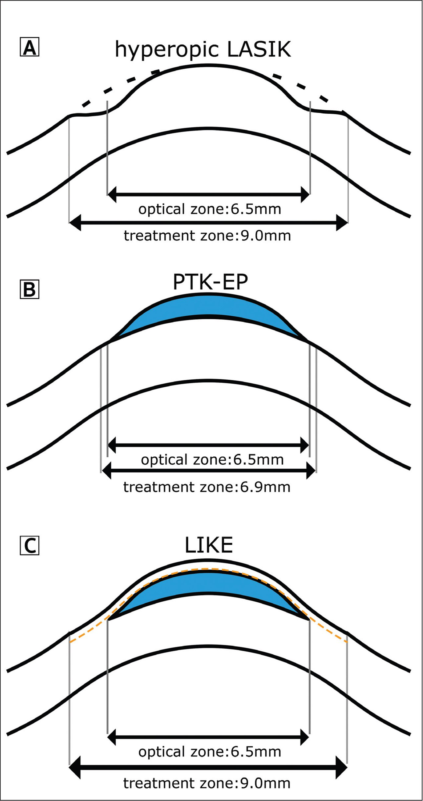 The diagram shows three refractive surgeries to correct the same refraction of hyperopia. The optical zone of surgeries is 6.5 mm and corneal flap diameter is 9 mm as treatment zone. The treatment zone of transepithelial phototherapeutic keratectomy (PTK-EP) is the area of removal corneal epithelium. (A) Hyperopic laser in situ keratomileusis (LASIK), the mid-peripheral corneal tissue is ablated (dotted line area). (B) In PTK-EP, the refractive lenticule is placed on top of the cornea after epithelium removal (blue area). (C) In femtosecond laser–assisted lenticule intrastromal keratoplasty (LIKE), the refractive lenticule (blue area) is implanted under the corneal LASIK flap (yellow dotted line).