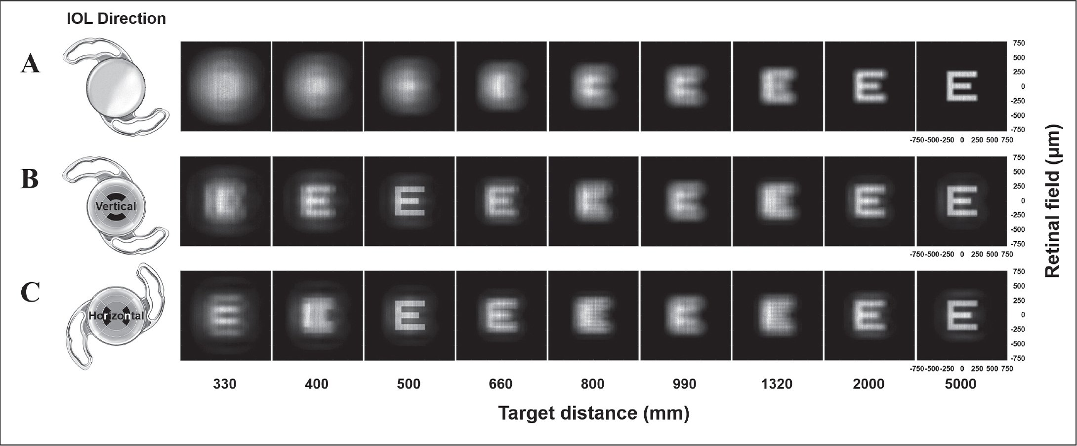Retinal images of pseudophakia using a monofocal or Precizon Presbyopic intraocular lens (IOL) (Ophtec BV) in integrated ray-tracing simulations (using Lambertian source E targets with various target distances and two IOL implantation directions). (A) Monofocal IOL. (B) Precizon Presbyopic IOL with vertically oriented first near segment. (C) Precizon Presbyopic IOL with horizontally oriented first near segment.