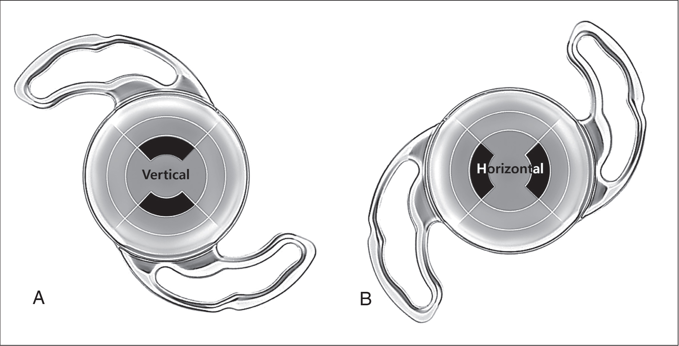 Two Precizon Presbyopic NVA intraocular lens (Ophtec BV) implantation directions according to the orientation of the first near segment of the lens. (A) Vertical orientation. (B) Horizontal orientation.