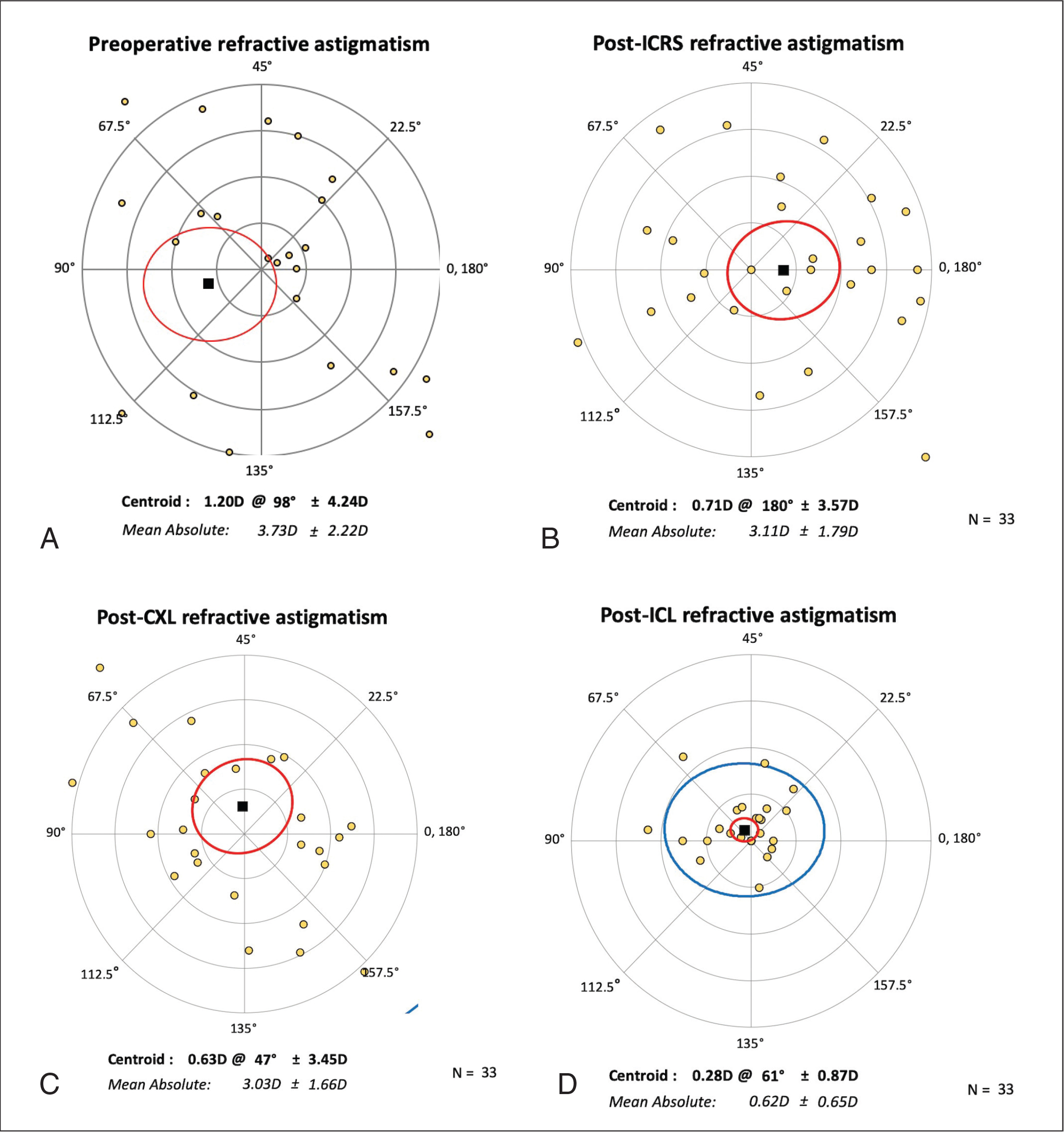 Double-angle plot of refractive astigmatism before and after three-step surgery for keratoconus: (A) preoperative values; (B) values after implantation of intracorneal ring segments (post-ICRS); (C) values after corneal cross-linking (post-CXL); and (D) values after implantation of intraocular contact lenses (post-ICL). D = diopters