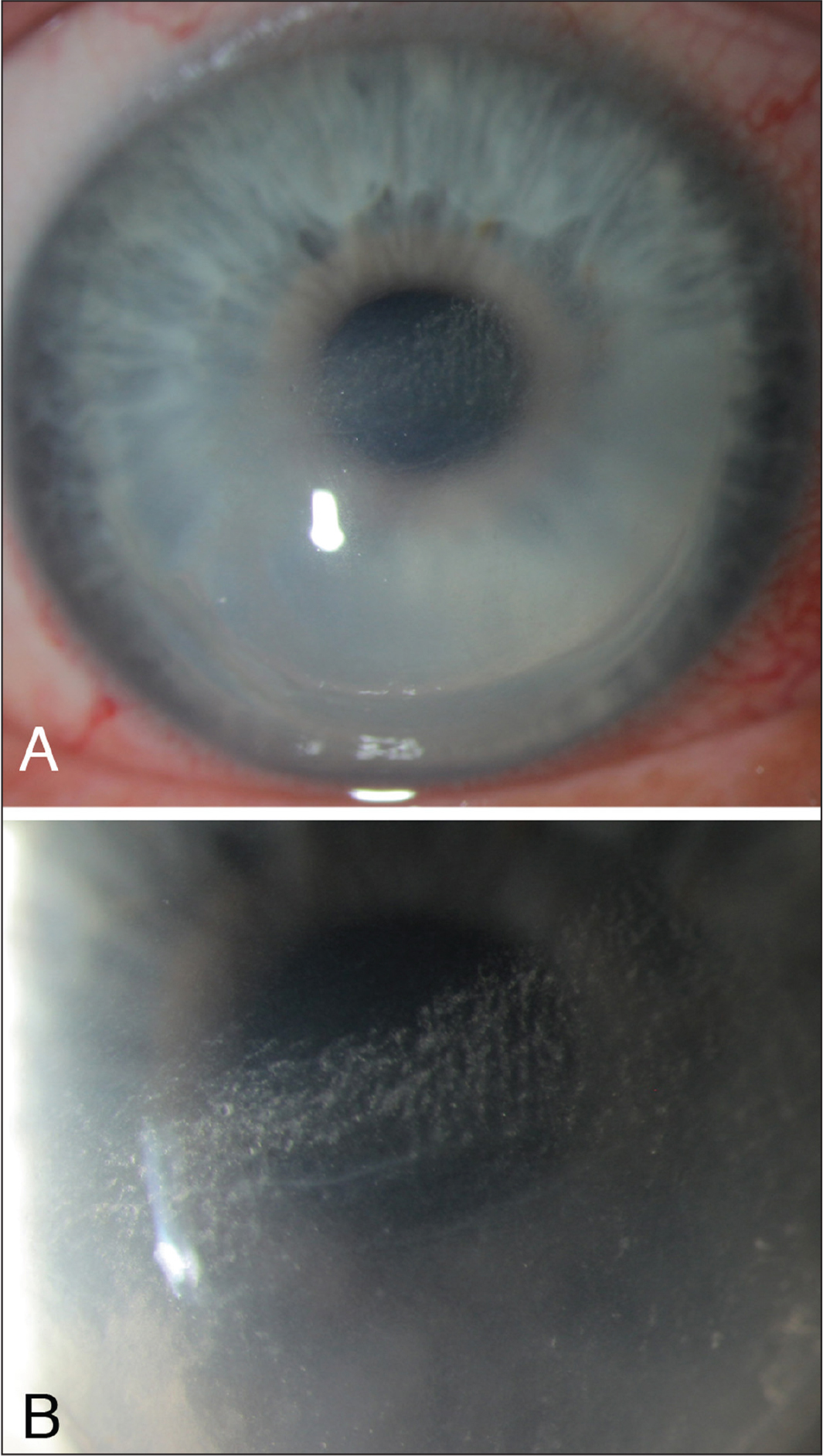 Slit-lamp photographs of stage III diffuse lamellar keratitis that occurred many years after laser in situ keratomileusis in response to epithelial trauma (original magnification [A] ×20, and [B] ×40).