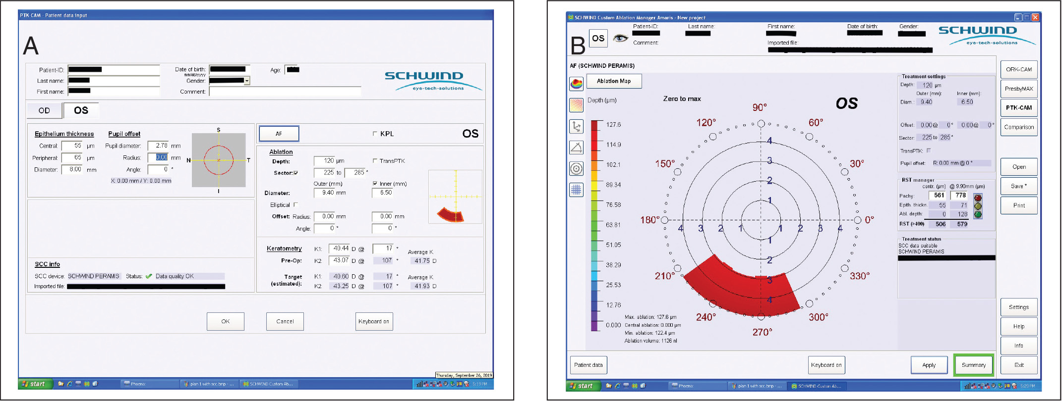 (A) Display screen of the customized ablation area phototherapeutic keratectomy setting of the CAM software (SCHWIND eye-tech-solutions GmbH) showing the input parameters of the ablation profile matching the target lesion. The pupil and treatment offset were chosen as zero to ensure the same centration as the image analysis software. (B) Display screen showing the generated ablation profile.