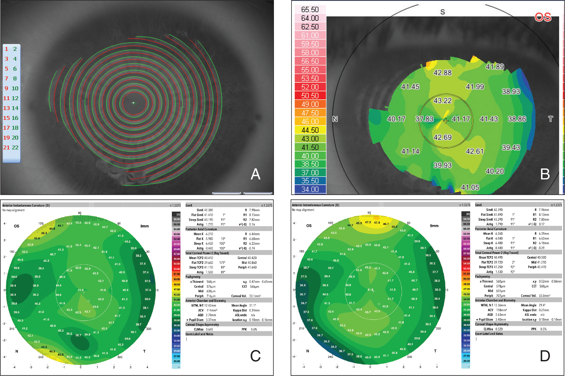 (A) Placido rings of the Peramis dual-Placido and pyramidal aberrometer platform (CSO) projected on the cornea preoperatively, showing lack of data acquisition over the inferonasal peripheral nodular lesion. (B) The color-coded instantaneous curvature map of the Peramis platform showing a measurement deficit over the lesion. (C) Preoperative instantaneous curvature map of the cornea using the GALILEI dual-Placido and Scheimpflug system (Ziemer). Moderate peripheral irregularities could be seen inferonasally at the site of the corneal lesion. (D) Instantaneous curvature map at 6 months postoperatively showing no change centrally, but smoothing of the irregularities inferonasally.