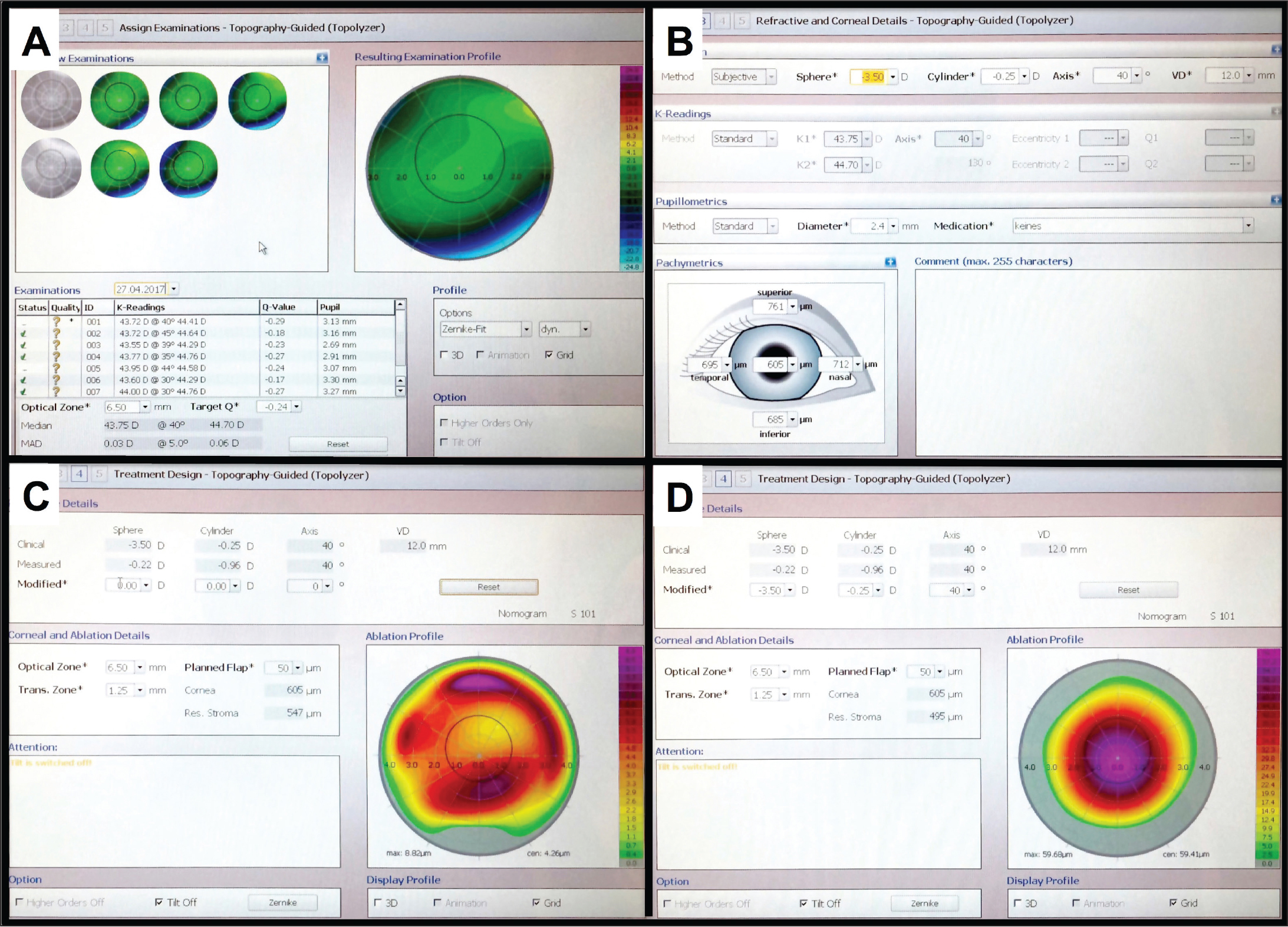 """(A) Data derived from the Topolyzer Vario system are uploaded to the Wavelight EX500 platform (Alcon Laboratories, Inc., Fort Worth, TX). The reproducibility of the maps and the measurements of keratometry and axes can be checked. In this clinical case, 7 scans were uploaded and only 5 were selected to plan the custom ablations (scans 1 and 5 were excluded). Note that the mean average deviation (MAD) was less than 0.05 diopters. (B) After the Topolyzer scans are processed, the patient's manifest refraction (""""Method Subjective""""), pachymetry values, and pupil size are entered in the software. (C) On this display, the surgeon can evaluate the discrepancy between manifest versus measured astigmatic axis. In the figure, the difference between the refractive and topographic astigmatism axis was less than 15°. The higher order aberrations ablation profile is displayed when the refractive error is set by the user to zero sphere and cylinder (""""Modified""""). This image shows the ablation that would be attempted to regularize the cornea regarding the corneal vertex. In the current case, a tetrafoil-like pattern and a maximum ablation of less than 10 microns are shown. (D) The subjective refraction is introduced again (""""Modified"""") to visualize the final ablation profile (optical zone of 6.5 mm). """"Clinical"""" refraction should contain manifest refraction without nomogram adjustment. """"Measured"""" refraction is the one measured by the Topolyzer Vario device. The """"Measured"""" spherical component has no clinical significance. It is the best fit sphere and should not be used for surgery planning. The """"Measured"""" cylinder and axis components are required for planning and are usually different from the ones of the manifest refraction. They are derived from the analysis of the anterior corneal elevation and are separated from the corneal higher order aberrations (coma, trefoil, etc.). """"Modified"""" refraction is the treatment that the excimer laser will use and must be determined by the surgeon. Re"""