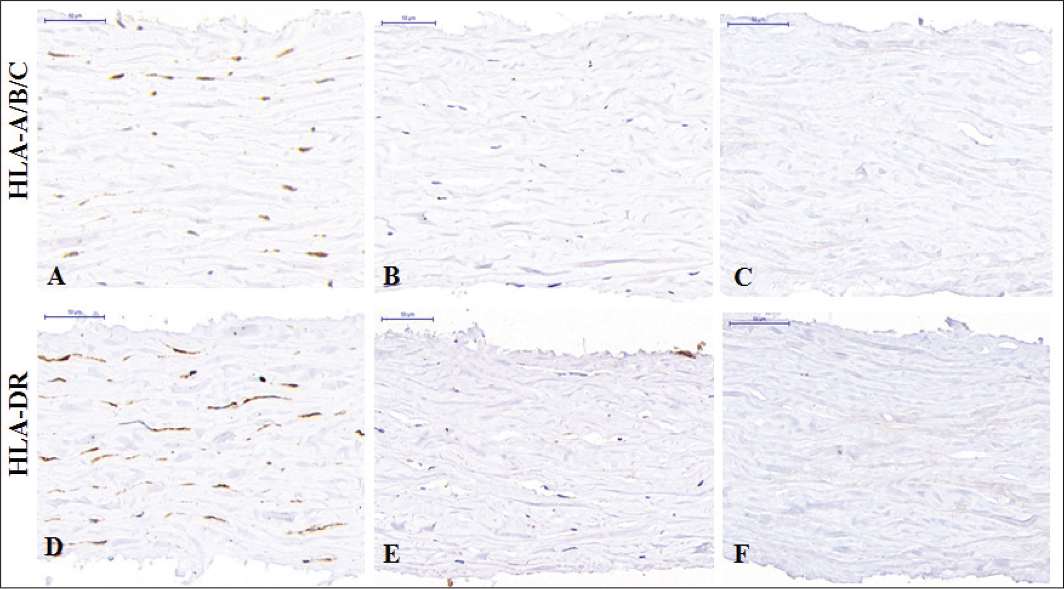 Immunohistochemistry of corneal stromal lenticules. In the fresh group (A and D), positive reactions (brown) for HLA-A/B/C and HLA-DR were observed on the cell surface. In the −78 °C anhydrous glycerol preservation group (B and E) and 0.1% sodium dodecyl sulfate (SDS) group (C and F), no obvious positive reactions were found (bar = 50 µm).