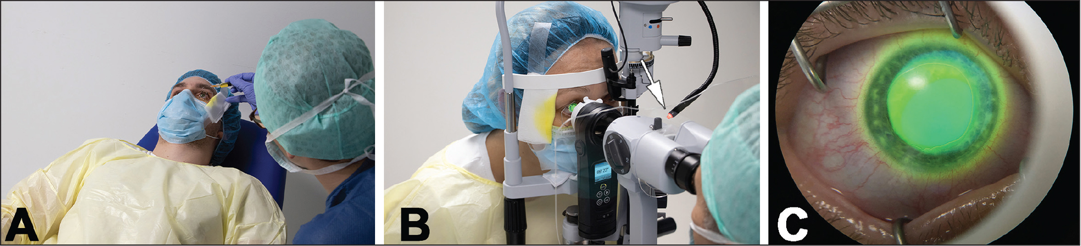 Riboflavin instillation and ultraviolet-A (UVA) irradiation. (A) Riboflavin instillation is performed in a reclining chair, applying riboflavin every 2 minutes for 10 minutes. (B) UVA irradiation of the selected eye. Steady fixation is facilitated by presenting a red fixation target to the untreated eye (arrow). (C) Surgeon view of the irradiation zone through the ocular lens of the slit lamp. Corneal cross-linking was performed with all parties wearing personal protective equipment per local legislation enacted to prevent the spread of severe acute respiratory syndrome coronavirus 2 (SARS-CoV-2) in medical facilities.