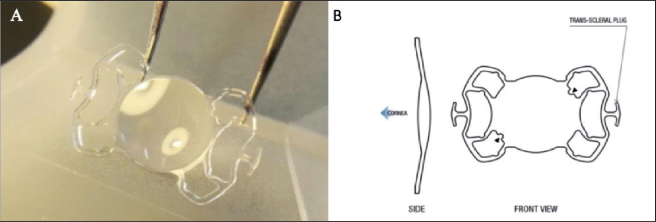 Photograph (A) and diagram (B) showing the structure of the new Carlevale sutureless scleral fixation intraocular lens (SSF-IOL; Soleko). Arrow points to the two notches on the optic plate (upper right and lower left).