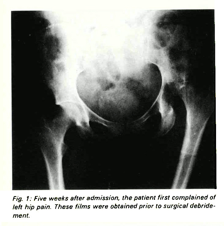 Fig. 1: Five weeks after admission, the patient first complained of left hip pain. These films were obtained prior to surgical debridement.
