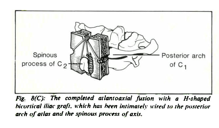Fig. 8(C): The completed atlantoaxial fusion with a H-s hoped hicoriieäl iliac graft, which has been intimately wired to the posterior arch of atlas and the spinous process of axis.