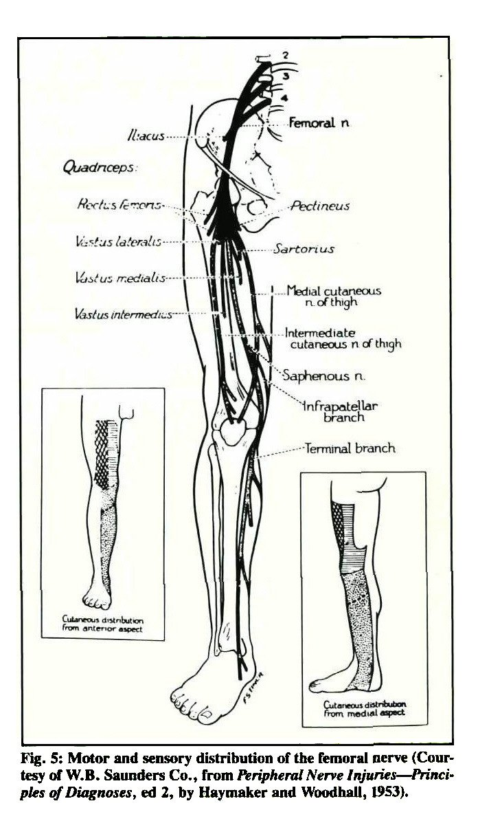 femoral neuropathy: a case report and topic review, Muscles