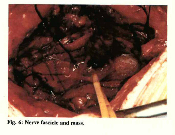Fig. 6: Nerve fascicle and mass.