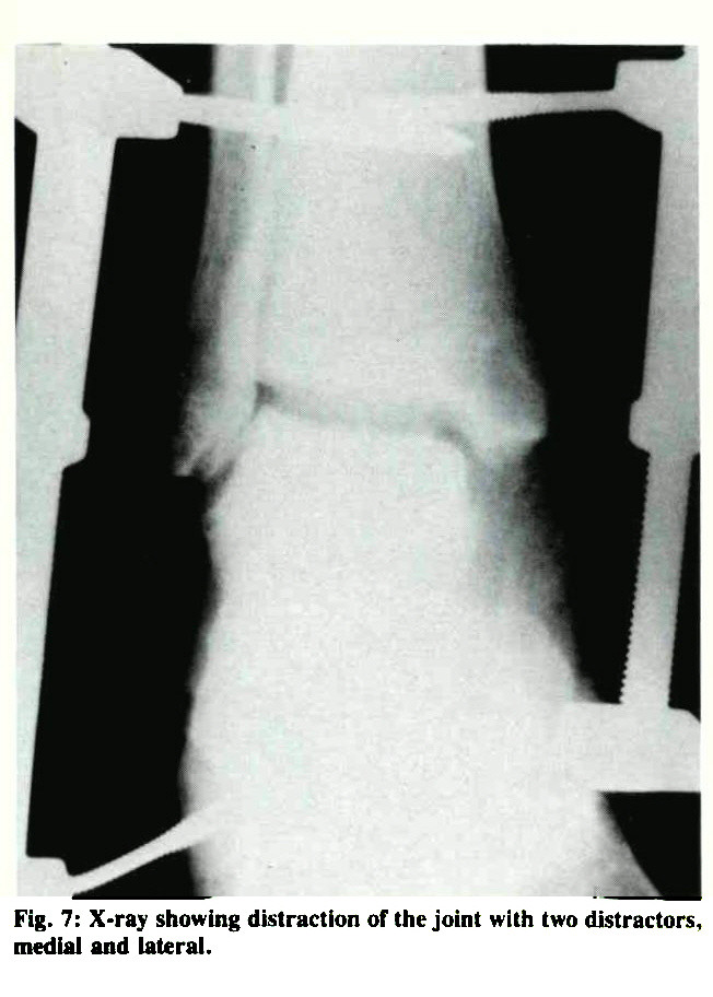 Fig. 7: X-ray showing distraction of the joint with two abstractors, medial and lateral.