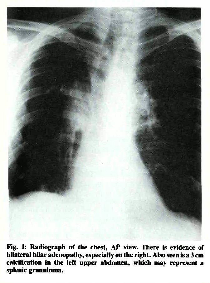 Fig. 1: Radiograph of the chest, AP view. There is evidence of bilateral hilar adenopathy, especially on the right. Also seen is a 3 cm calcification in the left upper abdomen, which may represent a splenic granuloma.