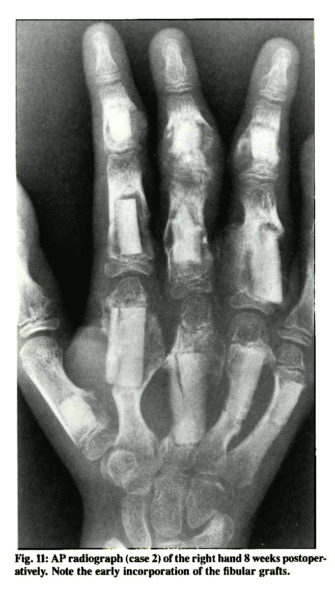Fig. 11: AP radiograph (case 2) of the right hand 8 weeks postoperatively. Note the early incorporation of the fibular grafts.