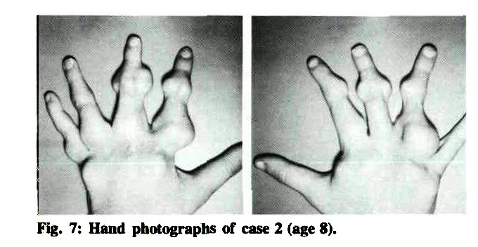 Fig. 7: Hand photographs of case 2 (age 8).