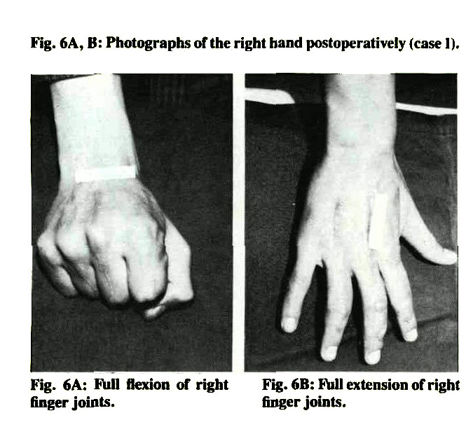 Fig. 6A, B: Photographs of the right hand postoperatively (case 1).