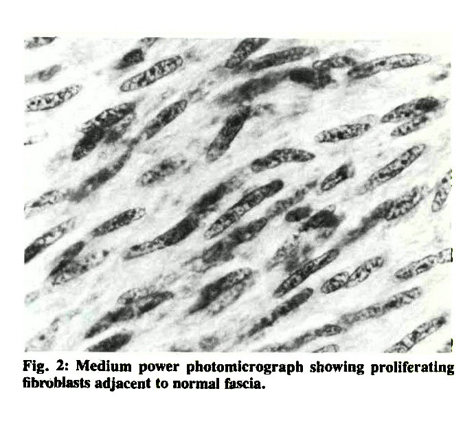 Fig. 2: Medium power photomicrograph showing proliferating fibroblasts adjacent to normal fascia.