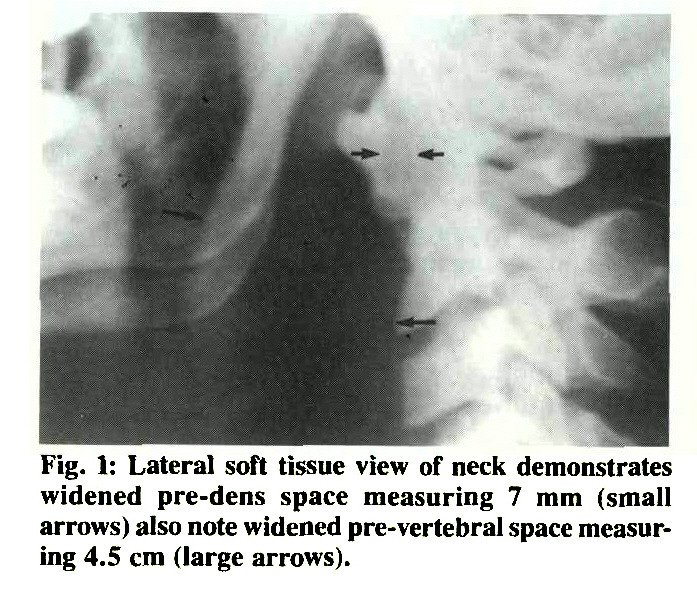 Fig. 1: Lateral soft tissue view of neck demonstrates widened pre-dens space measuring 7 mm (small arrows) also note widened pre- vertebral space measuring 4.5 cm (large arrows).