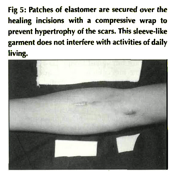 Fig 5: Patches of elastomer are secured over the healing incisions with a compressive wrap to prevent hypertrophy of the scars. This sleeve-like garment does not interfere with activities of daily living.