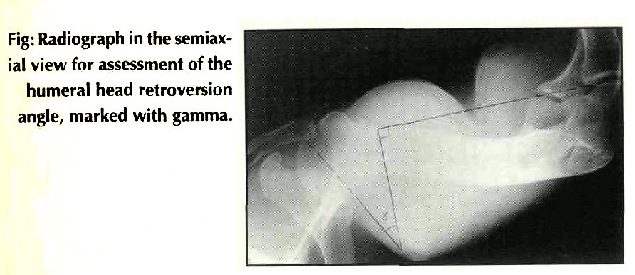 Stability In Relation To Humeral Head Retroversion After Surgical