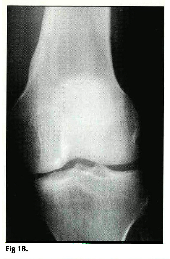 PATELLAR DISLOCATION: MEDIAL RETINACULAR TEARS, AVULSION FRACTURES ...