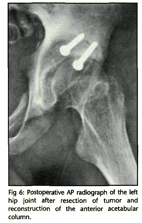 Fig 6: Postoperative AP radiograph of the left hip joint after resection of tumor and reconstruction of the anterior acetabular column.