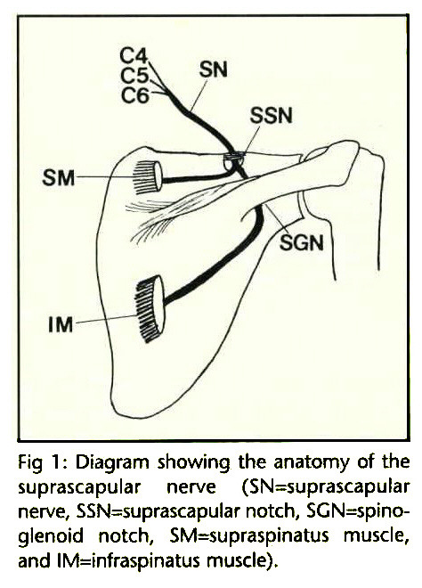 Fig 1 : Diagram showing the anatomy of the suprascapular nerve (SN=suprascapular nerve, SSN=suprascapular notch, SGN=spinoglenoid notch, SM=supraspinatus muscle, and IM=infraspinatus muscle).