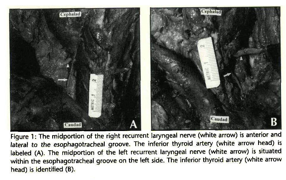 Figure 1 : The midportion of the right recurrent laryngeal nerve (white arrow) is anterior and lateral to the esophagotracheal groove. The inferior thyroid artery (white arrow head) is labeled (A). The midportion of the left recurrent laryngeal nerve (white arrow) is situated within the esophagotracheal groove on the left side. The inferior thyroid artery (white arrow head) is identified (B).