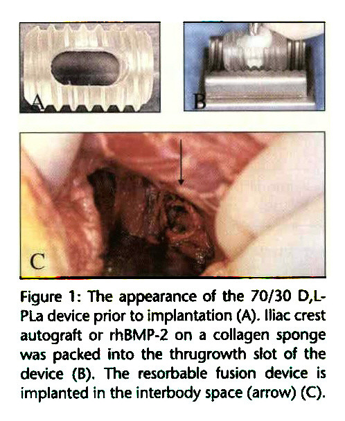 Figure 1 : The appearance of the 70/30 D,LPLa device prior to implantation (A), lilac crest autograft or rhBMP-2 on a collagen sponge was packed into the thrugrowth slot of the device (B). The resorbable fusion device is implanted in the interbody space (arrow) (C).