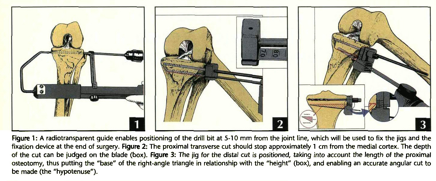 High tibial osteotomy physical therapy - Figure 1 A Radiotransparent Guide Enables Positioning Of The Drill Bit At 5 10