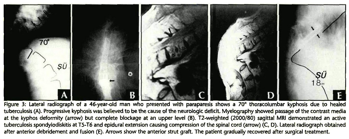 tuberculosis spondylitis In addition, magnetic resonance imaging revealed tuberculous spondylitis (pott's  disease) of the thoracic spine with involvement of the disk space and a.
