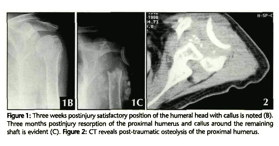 Osteolysis Of The Proximal Humerusreply
