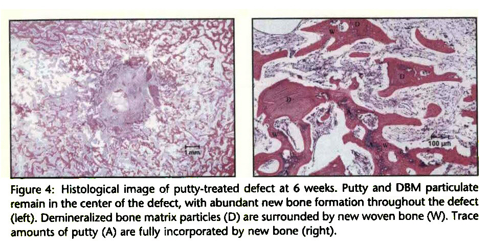 Figure 4: Histological image of putty-treated defect at 6 weeks. Putty and DBM particulate remain in the center of the defect, with abundant new bone formation throughout the defect (left). Demineralized bone matrix particles (D) are surrounded by new woven bone (W). Trace amounts of putty (A) are fully incorporated by new bone (right).